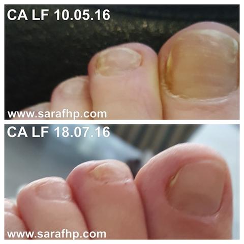 CA LF 10 05 16 - 18 07 16 comparison photo ( 2 months )