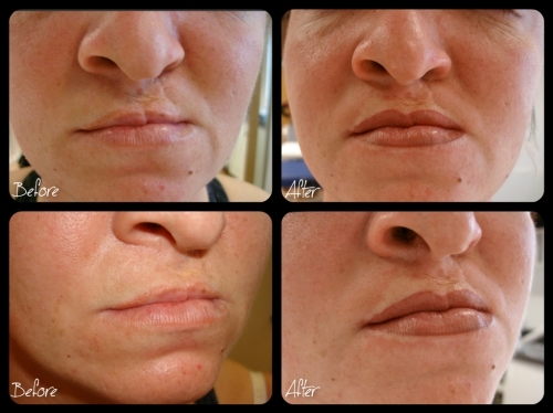 Semi Permanent Makeup   Scar relaxation For Cleft Lip Palata by El Truchan