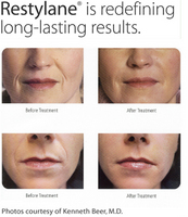 Anti-wrinkle treatments (fillers an Botox)