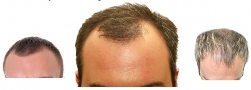 We have the answer for receding hairline
