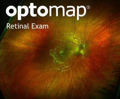 Optomap retinal examination