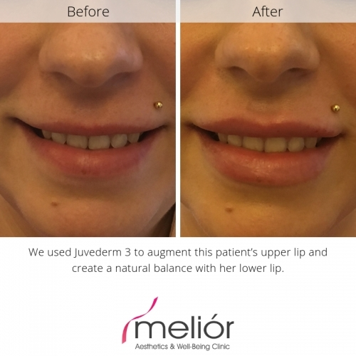 Before and after Juvederm 3 lip filler