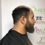 X-Factor finalist Faheem Asfraf replaces his hair with no surgery at our Hair loss centre