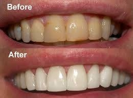 Before and After Tooth Whitening and Cosmetic Veneers