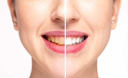 Woman Before And After Teeth Whitening