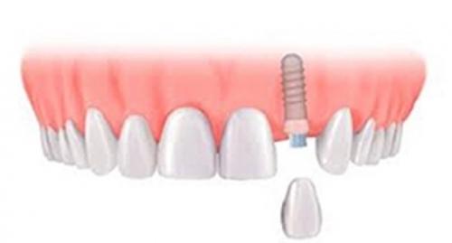 Optimized Dentalimplants