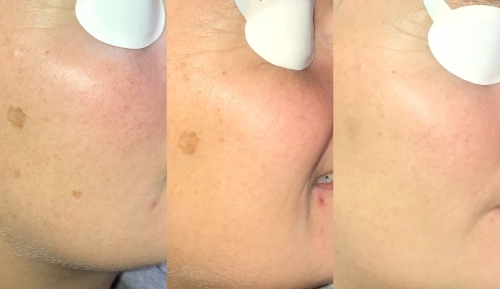 Reduction in Facial Pigmentation After Treatment at MediZen